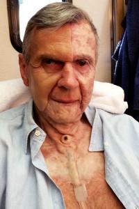 Фото 1: Уильям Б. Дэвис в роли Курильщика с обожжённым лицом и защитной противоожоговой пластиной.